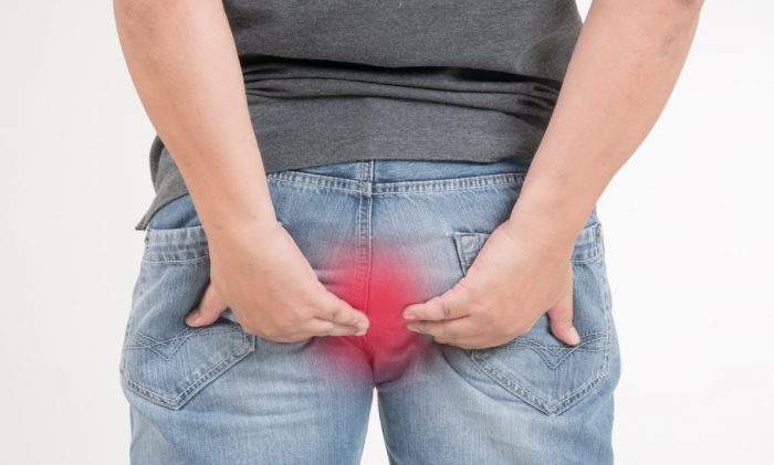 The Recurring Problem of hemorrhoids
